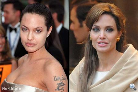 A 2010-es Angelina Jolie orra mintha vékonyabb lenne, mint régen, kevésbé lóg a szemhéja, és talán magasabbra került az arccsontja, ráadásul bőre ugyanolyan hibátlan, mint 10 éve.
