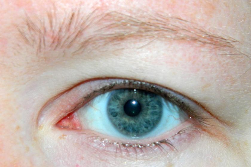 A ritkás szemöldök hormonális tünet lehet