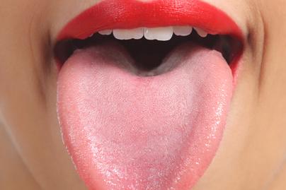 gyomorszag plakk a nyelven