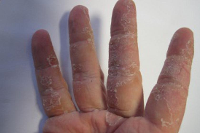 ujjak hámlása a férgek miatt