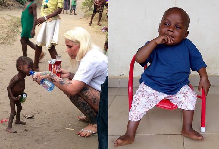 Balra: Hope és a dán segítője; Jobbra: Hope két évesen, miután felépült