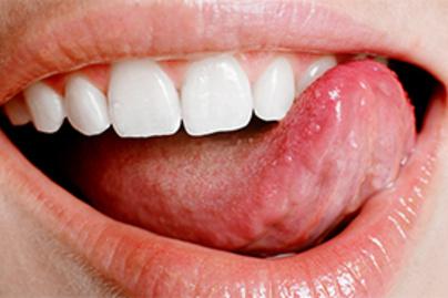 hpv száj torka