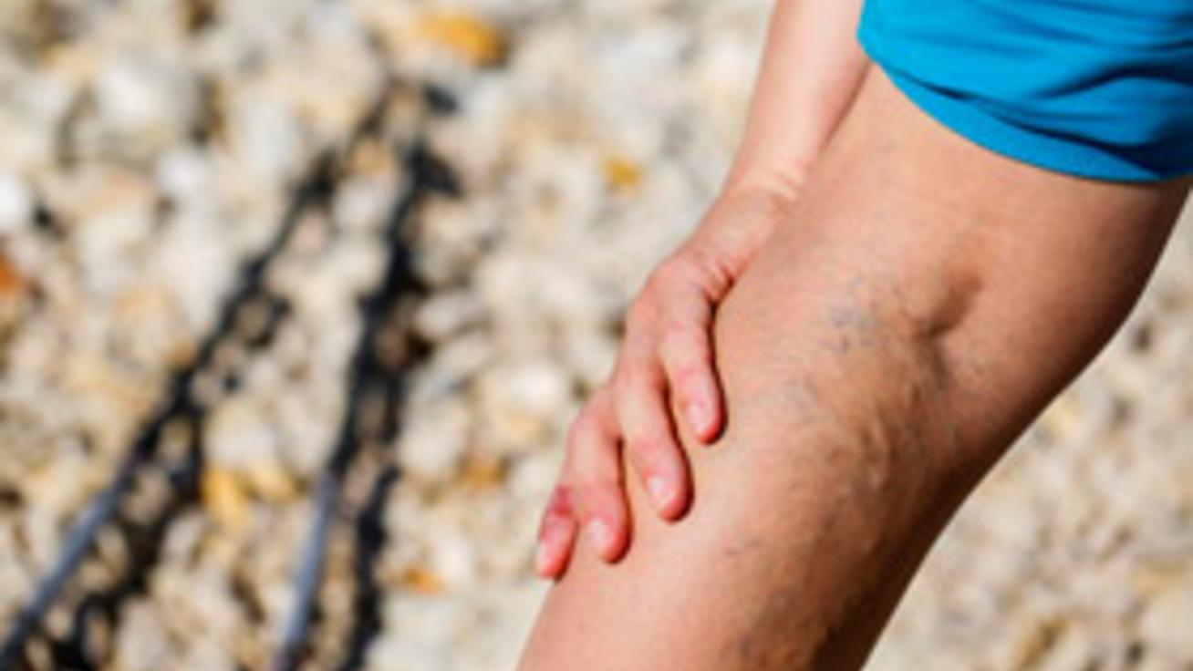 hogyan lehet legjobban gyógyítani a visszéreket a lábakon)