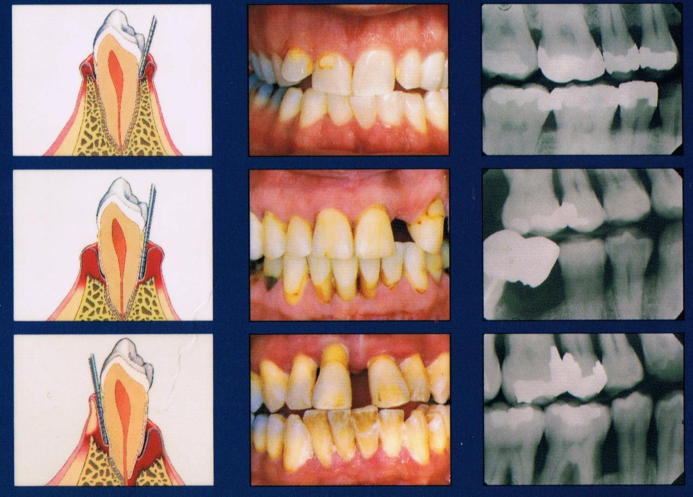A fogágybetegség megelőzése és teljeskörű kezelése   Haris Fogászat