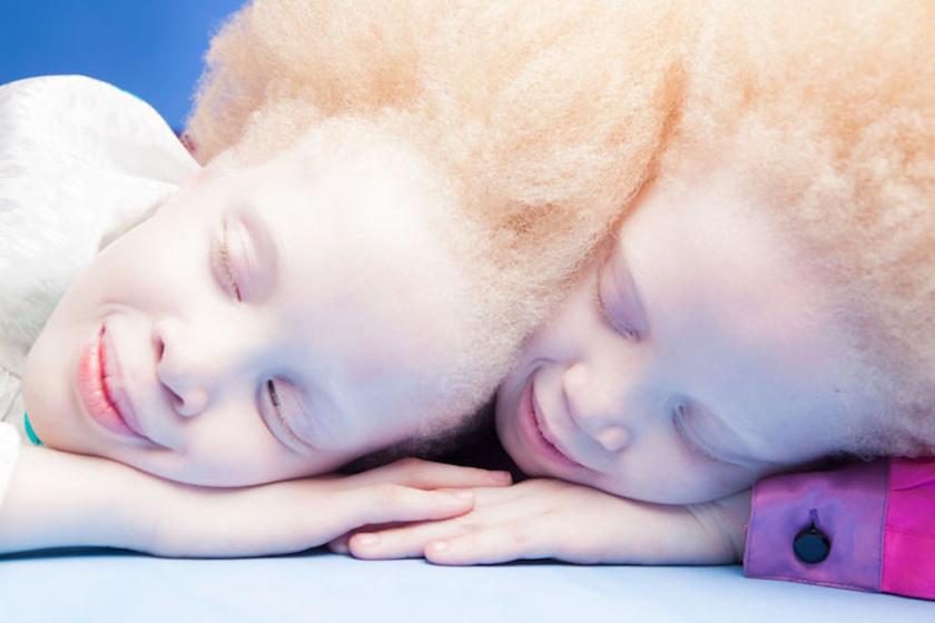 - Szerintünk az albinizmus gyönyörű. Imádjuk a hajunkat, a szem- és a bőrszínünket. Szeretjük, hogy különlegesek vagyunk - mondta Lara és Mara a Metrónak.