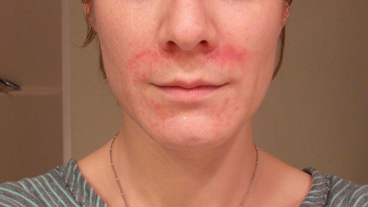 bőrproblémák az arcon)