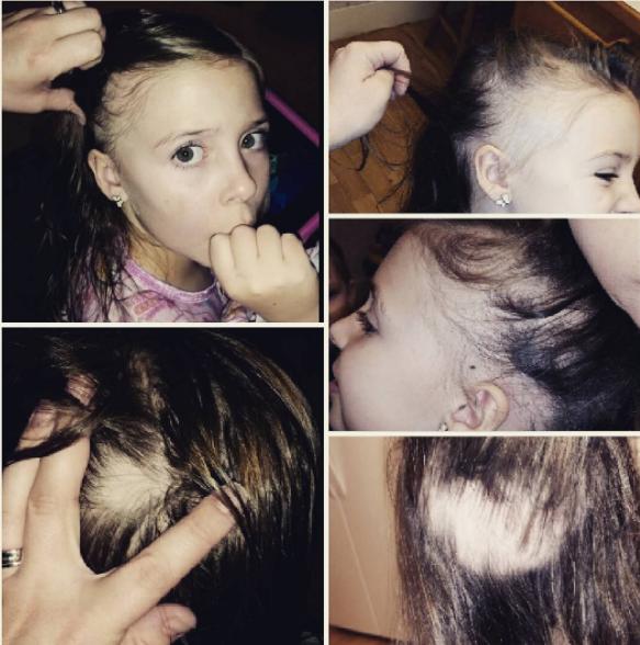 Gianessának hétéves korában kezdett hullani a haja.