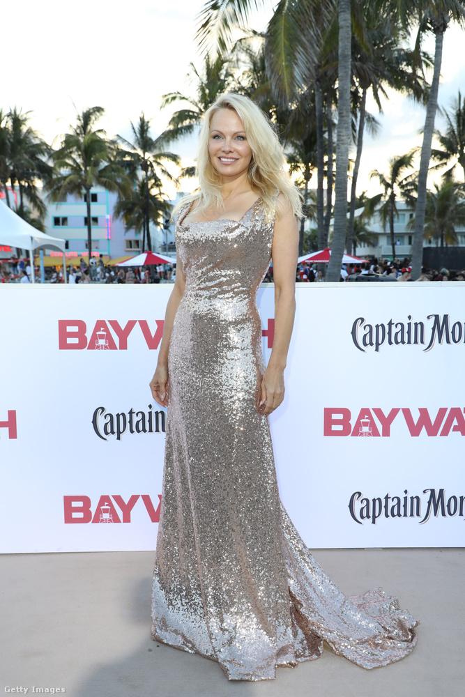 Ha Baywatch, akkor Pamela Anderson sem hiányozhat, szó szerint ő hozta el a hollywoodi csillogást erre a floridai eseményre