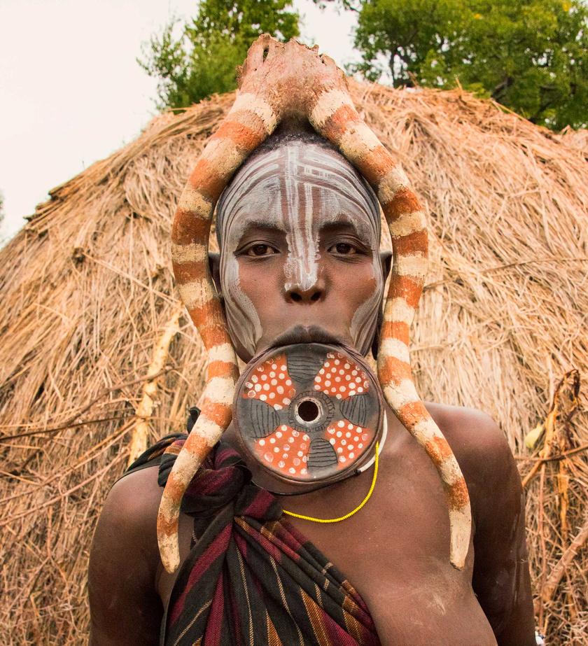 Afrikában, Etiópiában a mursi és surma nők gyerekkoruktól kezdve tágítják az alsó ajkukat. Ehhez ajakdugót vagy ajaklemezt használnak, és az alsó elülső fogaikat ki is húzzák, hogy megmaradjon a dísz.