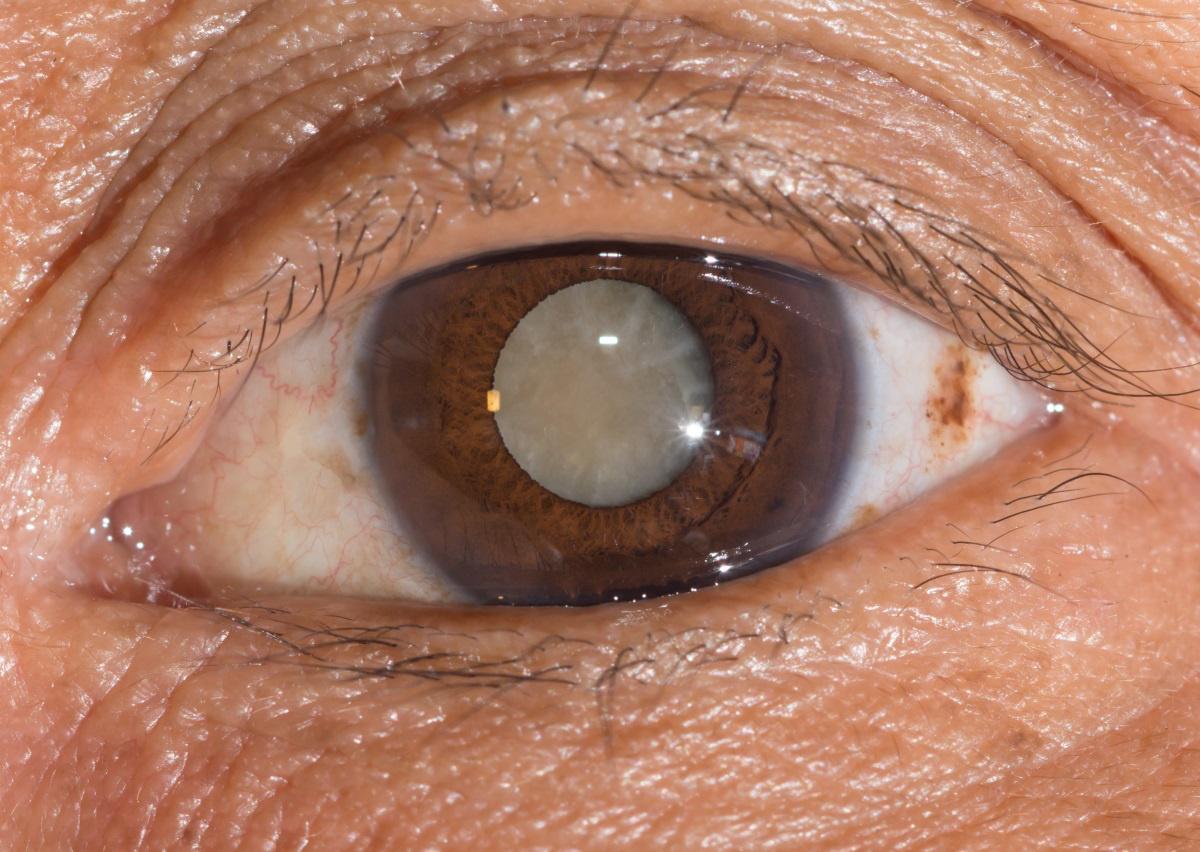 szemrák tünetei beöntés a paraziták kezelésében