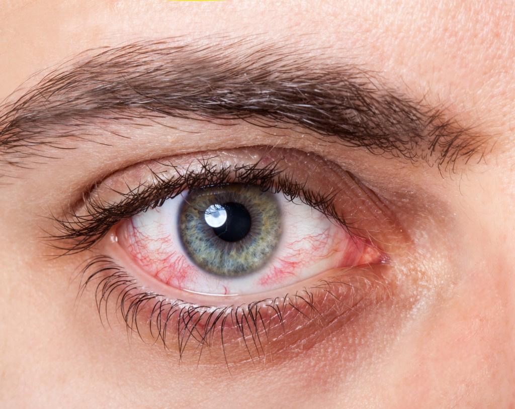szemrák tünetei A hpv vírus nem okoz rákot