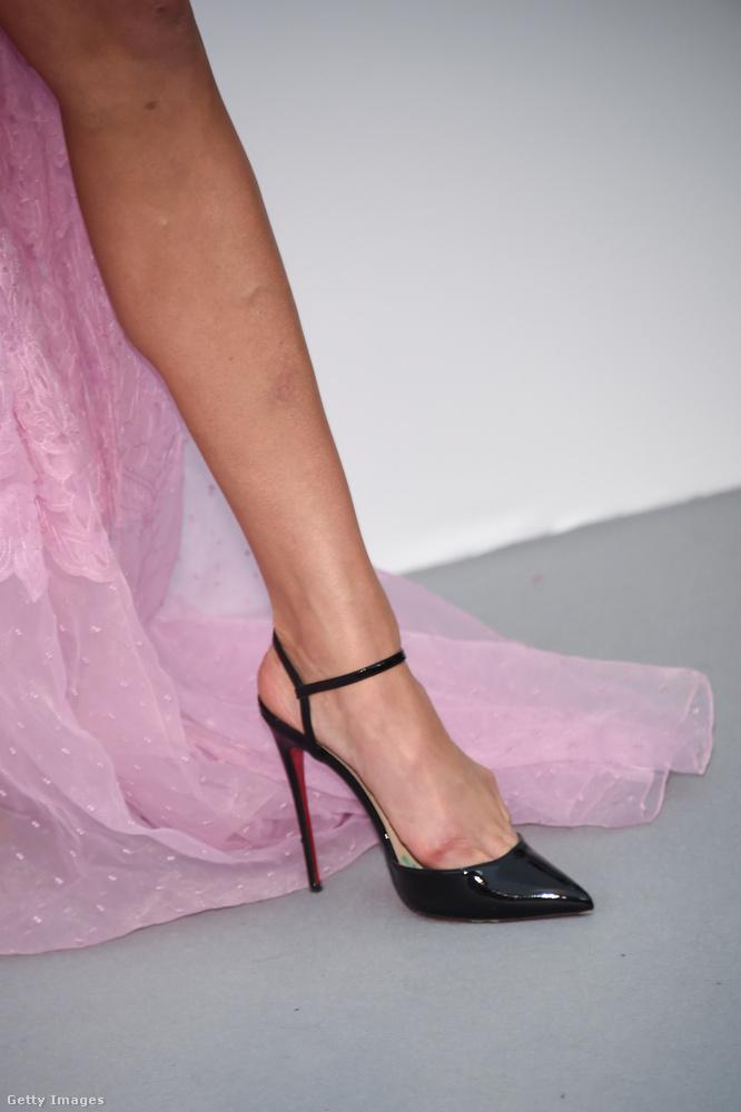 Itt jól látszik, mennyire feltörte Elsa Hosk lábát ez a cipő