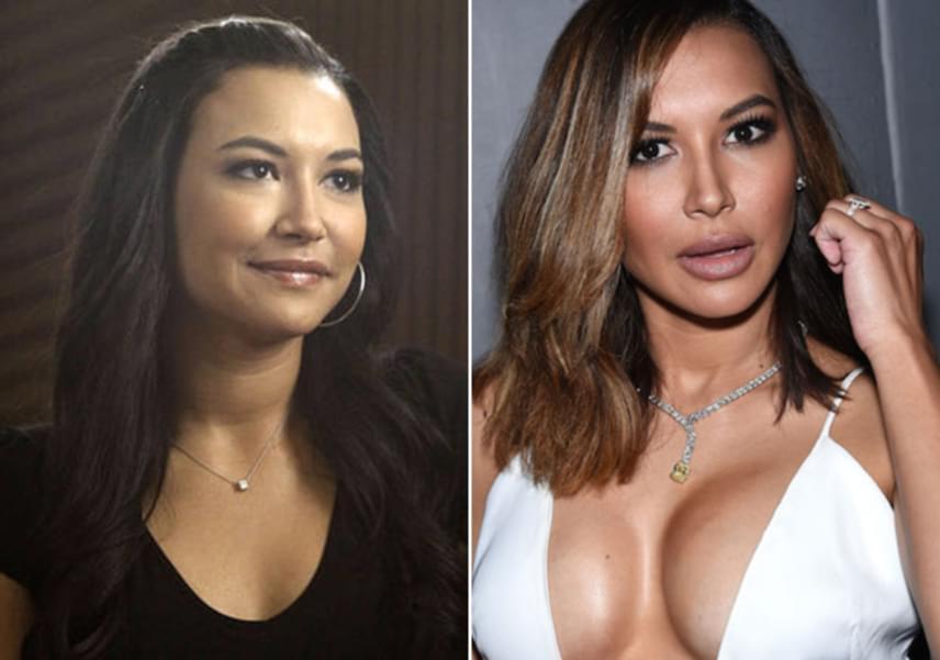 Naya Riverát a Glee sorozatban ismerhette meg a világ. A 29 éves színésznő gyermeke születése után döntött úgy, hogy megnagyobbíttatja a melleit, és arcvonásain is változtat. Hiba volt.