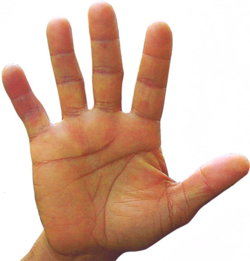 Praktikus típusA szögletes tenyér és a rövid ujjak a gyakorlatias típusra utalnak. Ha ilyen a kézformád, rád is igaz lehet a jellemzés, mely szerint az ide tartozó emberek a józan észre hallgatnak, megbízhatóak, és képesek felelősséget vállalni tetteikért. Szeretnek, mert gyorsan megtalálod a megoldásokat, nem akadsz el a problémákon.