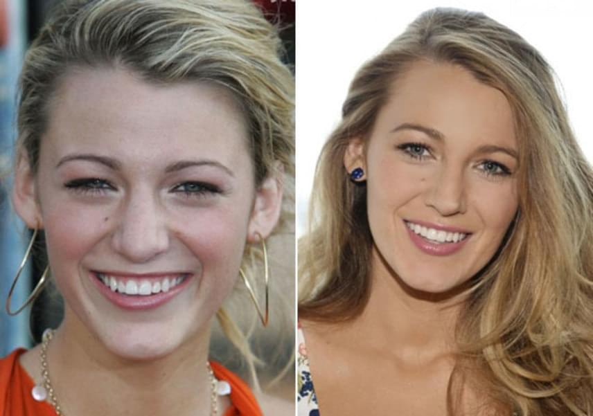 Van olyan sztár, aki tudja, hol a határ: Blake Lively arca szebb lett a minimális korrekciótól, ő ugyanis csupán az orrát engedte megoperálni még 2005-ben, 18 évesen.