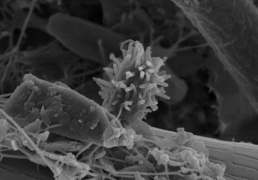 Vírusok, gombák, baktériumok ezrei, például coli baktérium, fekális streptococcus baktérium, penészgombák, továbbá veszélyforrásként vannak jelen bizonyos allergének is, például állati szőr, illetve toll. Még nagyobb veszélyt jelenthetnek az állati ürülékből származó peték: bármelyik játszótérre vagy vízpartra tévedhet fertőzött állat, mely ürítéssel terjeszti esetleges bakteriális vagy parazitafertőzését. A következő képek különösen megdöbbentőek.