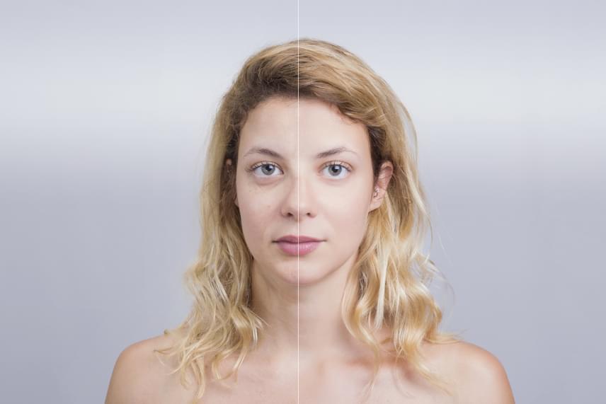 A megemelt vízfogyasztás remek öregedésgátló módszer, ugyanis a hidratált bőr kevésbé hajlamos ráncosodni. A kevésbé mély ráncokat például akár teljesen is kisimíthatja a megemelt folyadékbevitel.