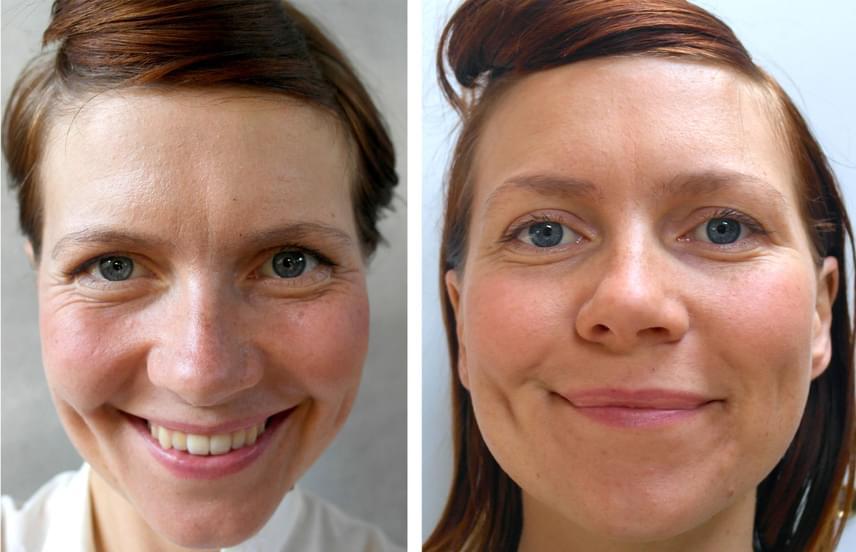 Lucy Aitken egy zarándokút során próbálta ki a vízkúrát, ami jól láthatóan már négy nap alatt megmutatta a hatását az arcán. Noha a két kép kissé más szögből és más megvilágításban készült, jól látszanak a különbségek a bőr tónusán és a szem környékén. Ez azonban még nem minden a vízzel kapcsolatban!