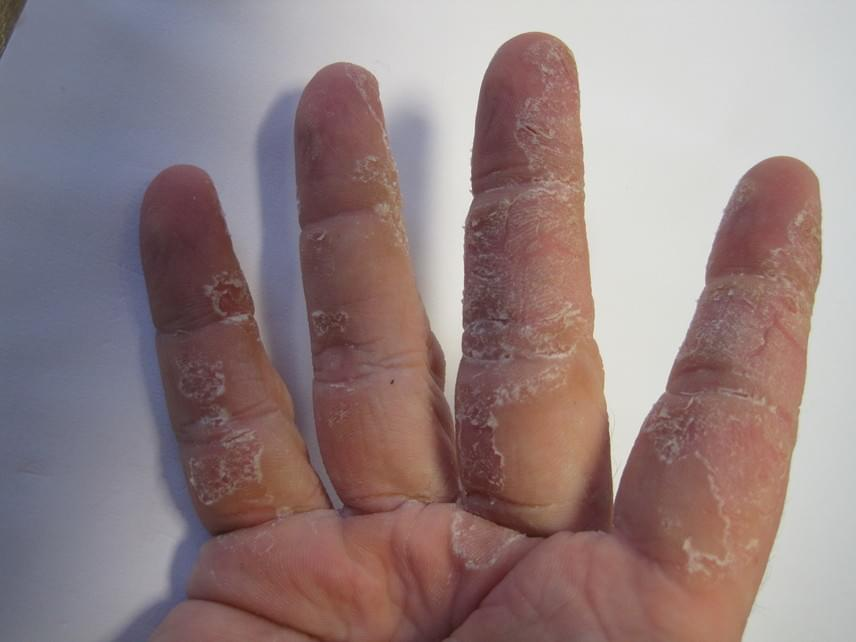 Hámló tenyér és ujjak                         Az említett területek erőteljes hámlása a psoriasis nevű autoimmun-betegség jelenlétére utalhat, mely bármely életkorban megmutatkozhat. A betegség fokozottabb tünetek esetén piros, repedezett bőrrel is jár, melyen gennyes hólyagok is megjelenhetnek. A tünetekkel feltétlenül keressetek fel egy bőrgyógyászt.