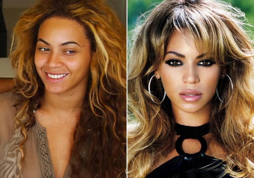 Még a gyönyörű Beyoncénak sem tökéletes a bőre! Smink nélküli fotóin jól látszik, hogy ugyanúgy pattanásokkal küzd, mint bármelyikünk.