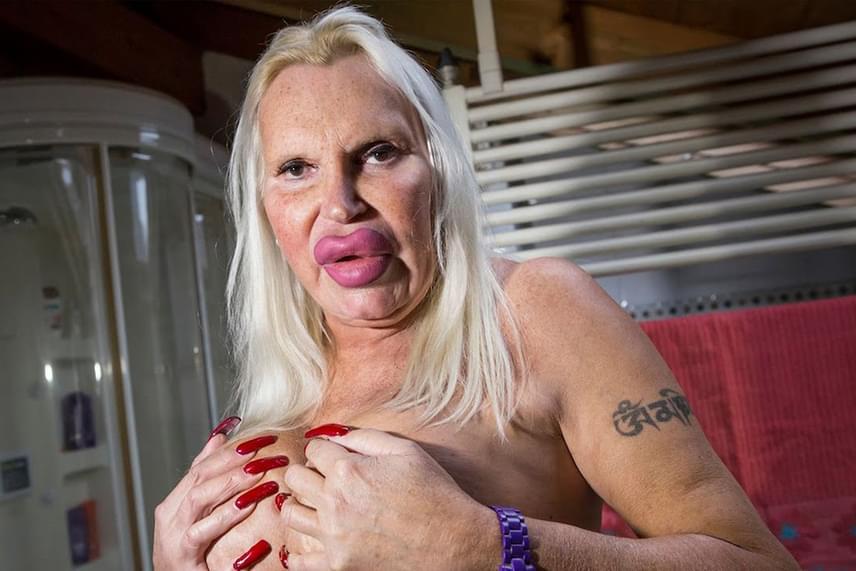 Fulvia Pellegrino egy transznemű olasz nő, aki 76 ezer dollárt, azaz 21 millió forintot költött jelenlegi alakja és arca elérésére. Célja mindezzel az volt, hogy az amerikai transznemű pornósztárra, Allanah Starr-ra hasonlítson. Ehhez 150 alkalommal töltette fel az arcát és az ajkait, négy mell- és egy fenéknagyobbításon esett át, valamint kétszer szívatta le magáról a zsírt. Pellegrino jelenleg is feleségével él, akivel nővérekként szeretik egymást.