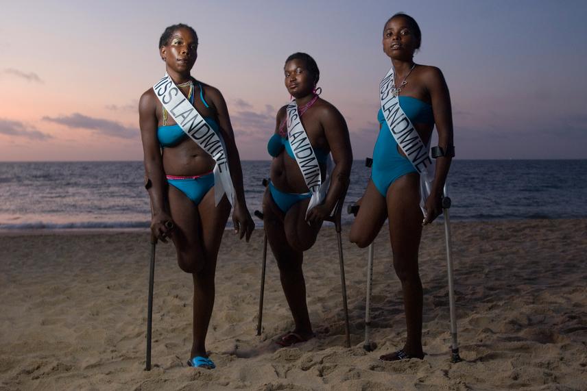 A Miss Landmine szépségversenyét két országban - Kambodzsában és Angolában - rendezik meg, melyek a világ taposó aknákkal legsűrűbben borított területei. A versenyzőket - akárcsak ezeken a vidékeken nagyon sok nőt, férfit és gyermeket - sajnos éppen ilyen baleset ért, ezért hiányzik legalább egy végtagjuk. A Miss Landmine kihívása azonban arra biztatja őket, hogy merjék gyönyörűnek érezni magukat az őket ért tragédia után is.