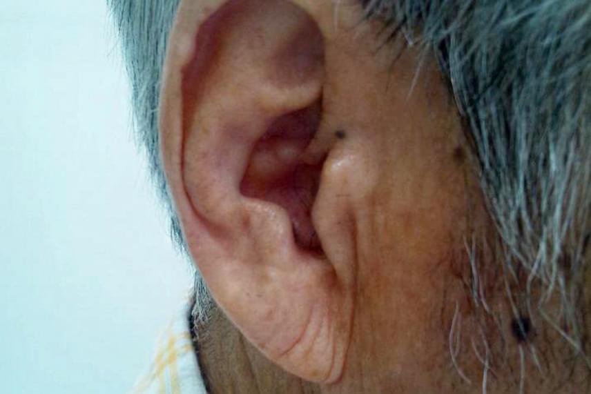A fülön, pontosabban a fülcimpán található úgynevezett Frank-jel - amelyet az összefüggést felfedező kutatóról neveztek el - a kutatások szerint összefüggésben állhat a szívbetegségek későbbi megjelenésével, és már akkor is utalhat ilyen problémára, ha annak még semmiféle más jele nincs. A függőleges és általában a cimpa aljától a fülkagyló nyílásáig tartó ránc továbbá koszorúér-betegséget, valamint cukorbetegséget is jelezhet. Az összefüggés okát máig kutatják a tudósok, egyes elméletek szerint azonban az állhat a háttérben, hogy a szívizom és a fülcimpa alkotóanyaga genetikailag hasonló, de az is igaz lehet, hogy a fülön megjelenő ráncok szoros összefüggést mutatnak az erek károsodásával.