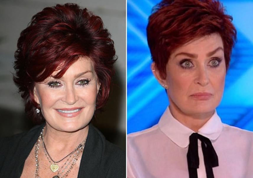 Sharon Osbourne arca néhány évvel ezelőtt, és most. A sztárnak szinte teljesen eltűnt a mimikája, szinte jégszoborszerűen fest.