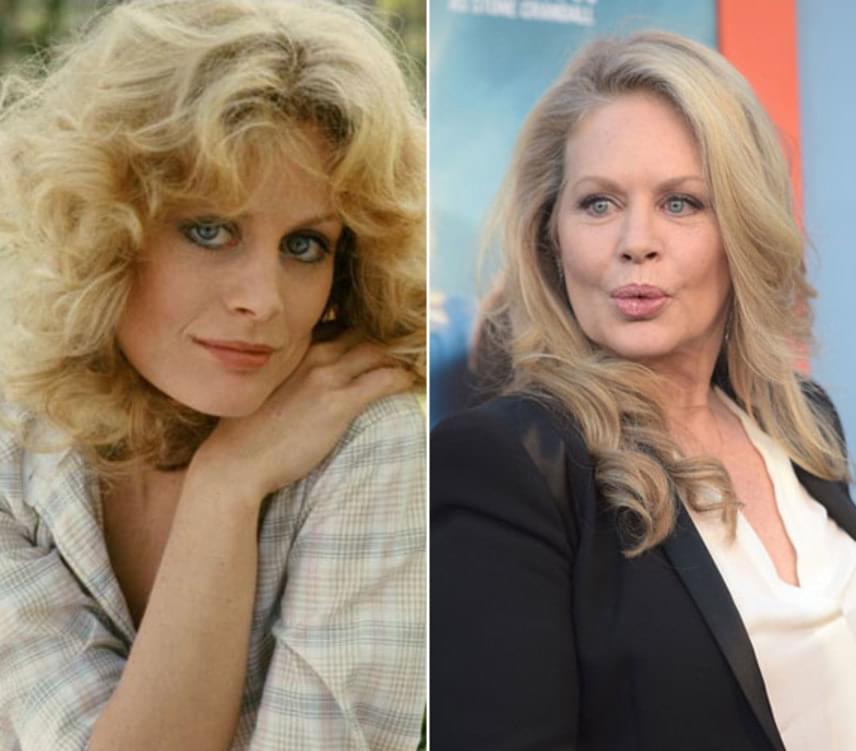 Beverly D'Angelo formálta meg Sheila Franklint, a gazdag szülők elkényeztett lányát, akit szintén beszippant a hippik felszabadult világa. A 64 éves amerikai színésznőt a Hair bemutatása után egy évvel Golden Globe-díjra jelölték A szénbányász lánya című filmdrámában nyújtott alakításáért, a legtöbben pedig a Családi vakáció-filmekből emlékezhetnek még rá, amiben Chevy Chase feleségét alakította.