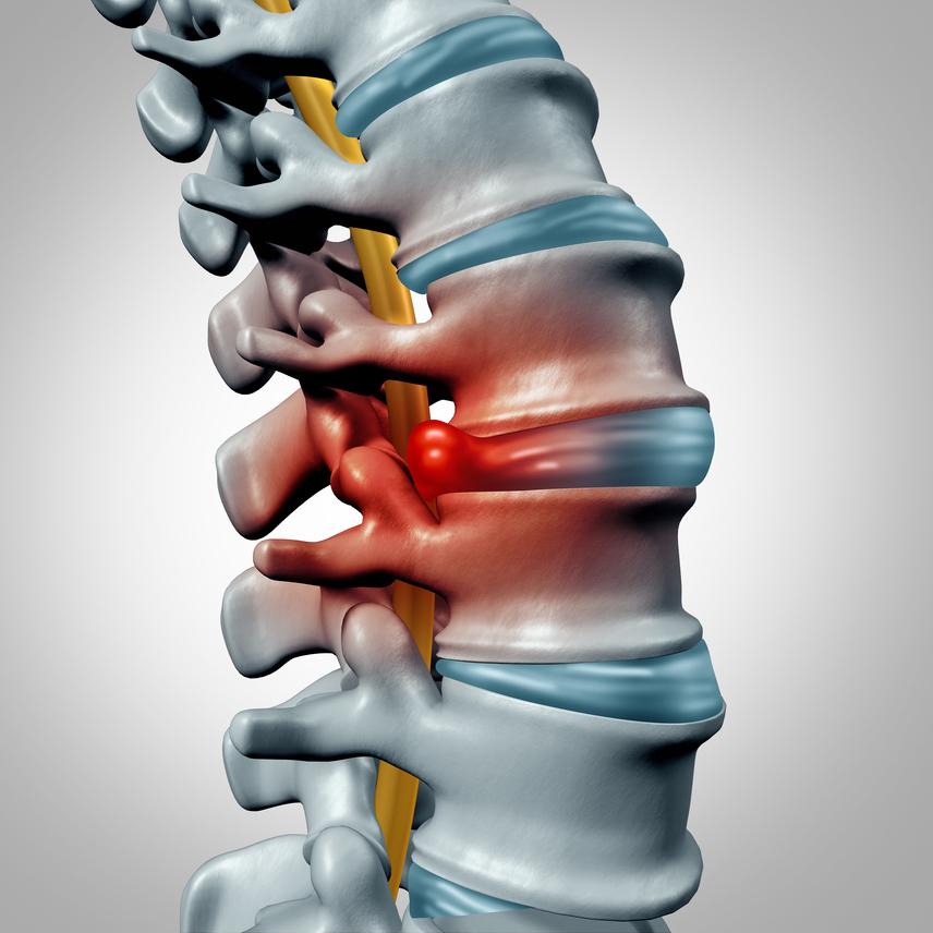 A porckorongsérv vagy más néven gerincsérv kialakulását a szervezet kopásos folyamatai okozhatják, így idősebb korban gyakoribbak. Ennek során a porckorong rugalmatlanná válik, a belső kocsonyás rész a gerinccsatornába nyomul, majd a gerincfalon kitörve sérvesedik, ami már az idegeket is nyomja, ezért erős fájdalmakhoz vezethet.