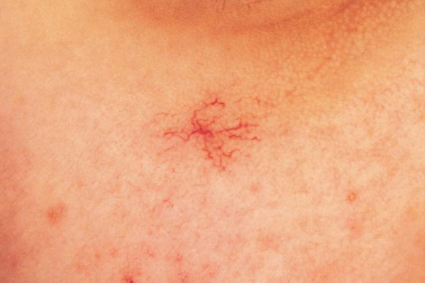 A májbetegség előbbin túl más bőrtünetet is okozhat, jellemző például a képen is látható pókangioma - az értágulatok sugár irányban helyezkednek el, innen az elnevezés -, melynek többszörös megjelenése is nagyon gyanús jel lehet.