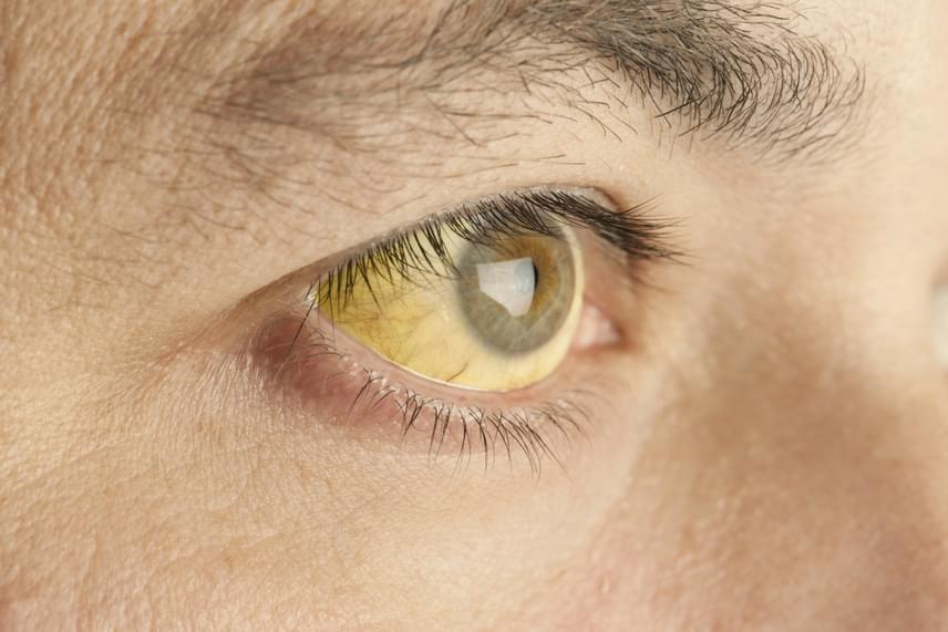 A májbetegség egyértelmű jele lehet a sárgaság, mely a szemen és a bőrön is megjelenhet. A jelenség hátterében a vér megemelkedett bilirubin-koncentrációja áll. A színelváltozás jellemzően először a szemfehérjén jelentkezik, a bőrön csak később.