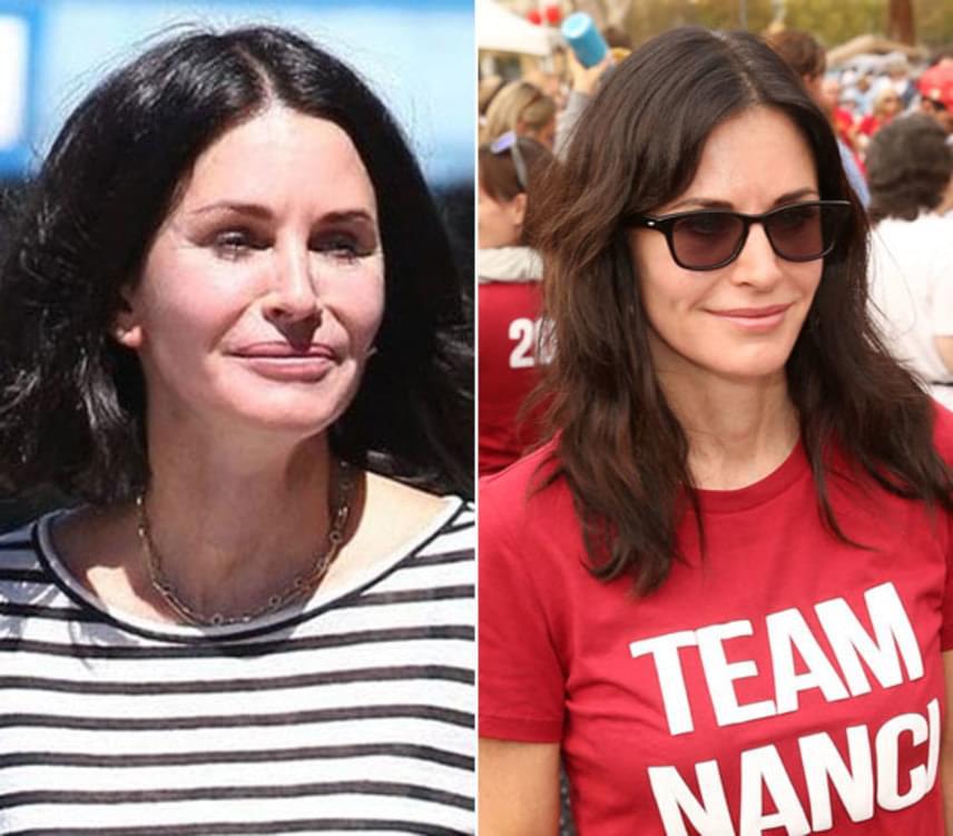 Az 52 éves amerikai színésznőt több alkalommal is lefotózták már eltorzult arccal, amelyet a túlzott szépészeti beavatkozásoknak köszönhetett. Mostanra azonban vonásai visszanyerték frissességüket és természetességüket.