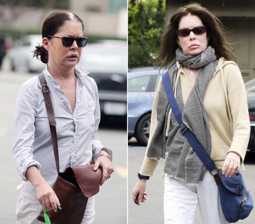 2010 óta Lara Flynn Boyle-t egyre aggasztóbb külsővel kapták lencsevégre: kacsaszája és vékonyabbra szabott orra nem túl szép, a rengeteg botox az arcában pedig szintén megtette pusztító hatását.