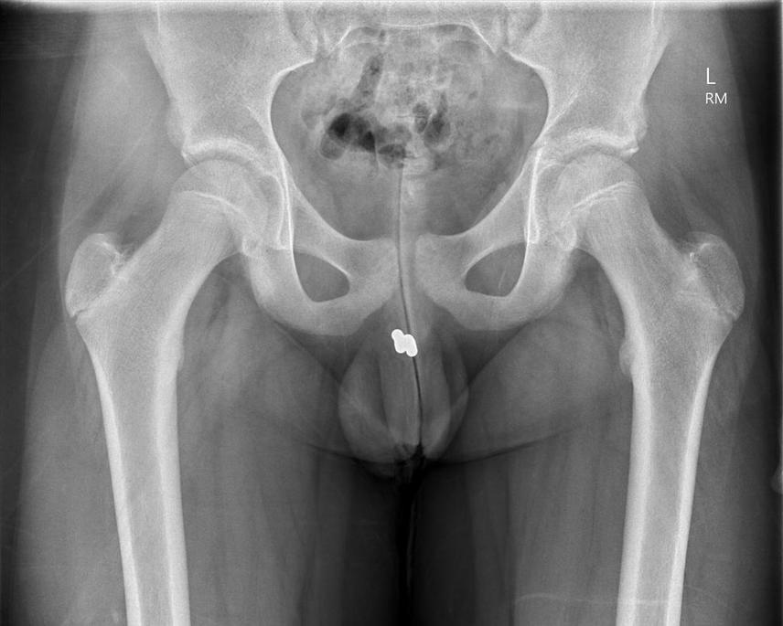 A 15 éves fiú azt mondta, hogy elesett, és véletlenül lenyelt két kis mágnest, ami végül a péniszében landolt. A röntgenorvos nem nagyon hitte el, inkább egy bizarr kísérletre gyanakodott.