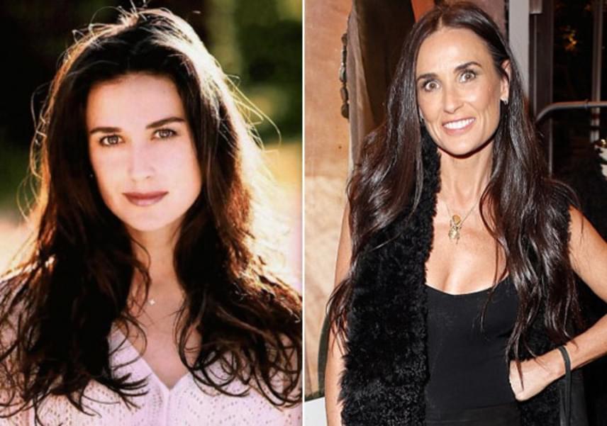 Az elmúlt 20 évben ennyit változott a színésznő arca - bájos vonásai mára teljesen megfagytak, sőt, mintha a szemei sem állnának természetesen.