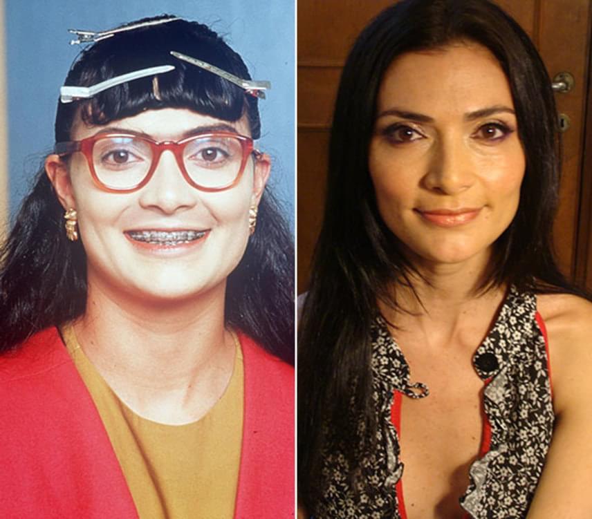 Ana María Orozco 26 évesen kapta meg Betty, a csúnya lány szerepét a népszerű kolumbiai szappanoperában, amiben a szerep kedvéért jócskán elcsúfították.