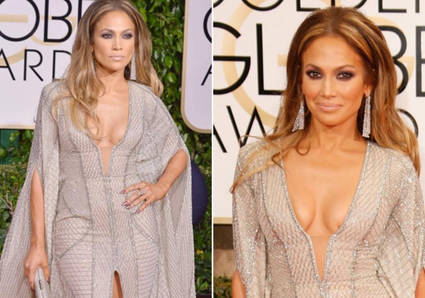 Jennifer Lopez a Golden Globe-gálán került kínos helyzetbe a cicitapasza miatt: az félrecsúszott a vörös szőnyegen, ráadásul elég furcsa szögben.