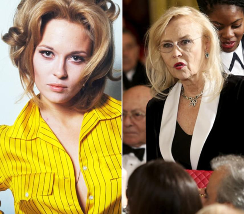 A 75 éves színésznő már alig emlékeztet egykori önmagára, köszönhetően a sok botoxnak és ráncfelvarrásnak, amelyek következményeként most így néz ki az arca.