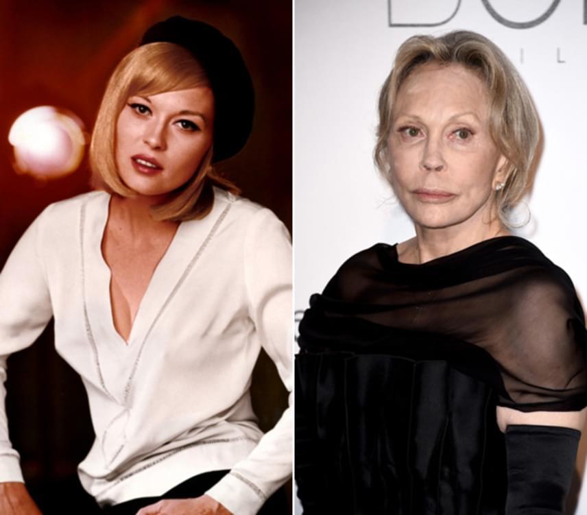 A Hálózat című filmdrámáért Oscar-díjjal jutalmazott színésznő a szépészeti beavatkozások egyik áldozata. Kár, hogy senki sem beszélte le róla, hogy kés alá feküdjön.