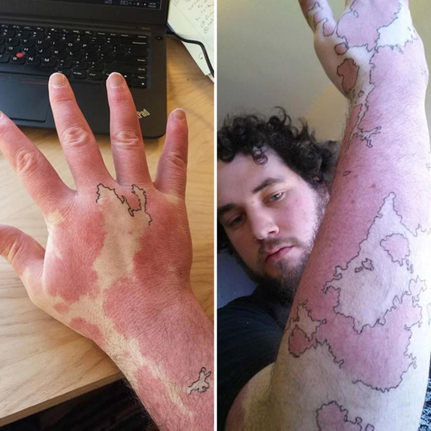 A férfi, akinek a kézfeje nagy részét és a karját is egy nagy anyajegy borítja, meglátta a színkülönbségben a fantáziát: körberajzoltatta a vöröses területet, amitől úgy néz ki, mintha egy térképet tetováltatott volna magára.