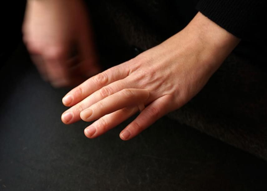 Ha nem tudnád, rájönnél, mi olyan furcsa ezen a kézen? Első ránézésre talán nem is tűnne fel a különös gyűrű.