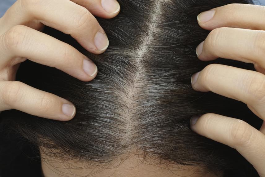 Serkentsd a fejbőr vérkeringését masszázzsal, amit végezhetsz a samponozáskor is, de akár valamilyen növényi olajjal is megteheted. Nem kell dörzsölni, de erős, oldalirányban történő mozdulatokkal akár minden nap átmasszírozhatod a fejbőrt.