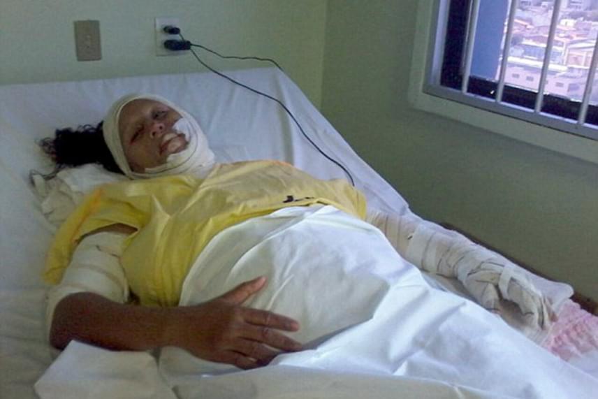 Maria végtagjai, nyaka és arca égett meg, karján és lábán voltak a legsúlyosabbak a sérülések. A hiányzó bőr helyére az orvosok tilápiabőrt helyeztek, mely alatt a terület regenerálódni tudott.