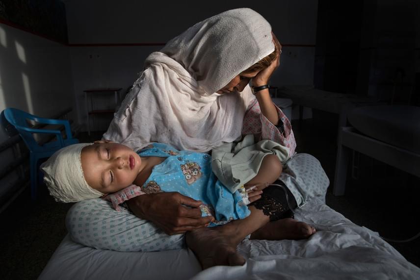 Nadzsiba, egy afgán asszony pokolgéprobbanásban megsebesült kétéves unokaöccsét, Sabirt tartja ölében Kabulban 2016. március 29-én. Paula Bronstein, a Time Lightbox fotóriportere az Egy elfeledett háború csendes áldozatai című képével első díjat nyert a napi élet egyedi kategóriában.