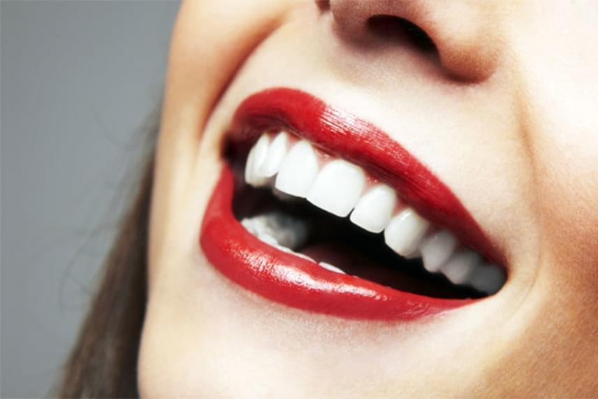 A második lépés, hogy átdörzsöld az ajkaidat egy fogkefével, így javul kicsit a vérellátás, és az ajkad se lesz cserepes. Télen különösen fontos, hogy a hideg és a szél ne szárítsa ki a szádat. Ez a módszer életet lehel ajkaidba.