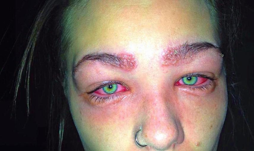 Nagyon fontos, hogy minden kémiai eljárás - például haj-, szemöldök- vagy szempillafestés - előtt bőrpróbát kell végezni. Bár a termékleírás erre figyelmeztetett, Tylah mégis kihagyta a próbát. Szó szerint horrorfilmbe illő, ahogy ezek után kinézett: nem tudta, hogy az egyik összetevőre allergiás.