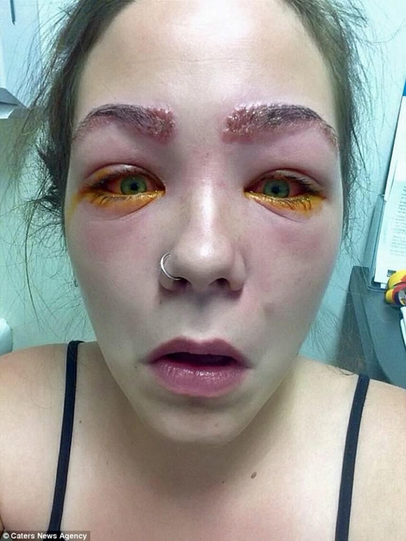 Tylah szeme és szemöldöke is hatalmasra duzzadt, és komoly fájdalmai is voltak:                         - Olyan volt, mintha homokos lenne a szemgolyóm, és pengék vagdosnák a szempillám - mondta a lány.