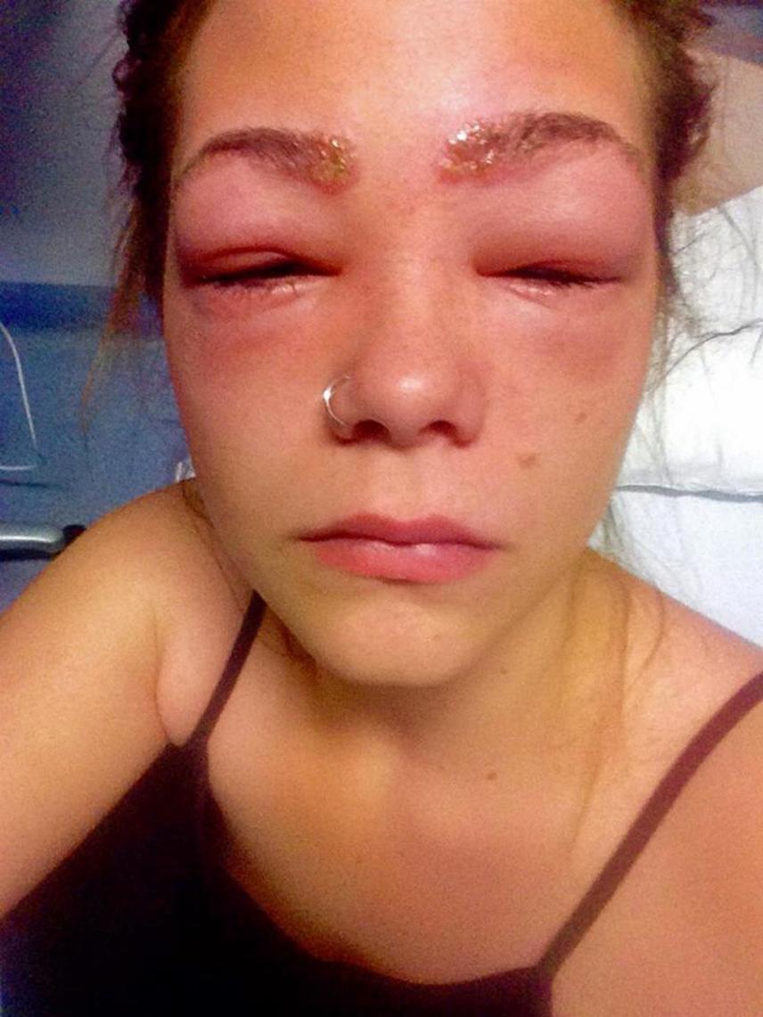 A 16 éves Tylah Durie csaknem elvesztette a látását, amikor feltett egy otthoni használatra árusított, 1000 hour hair dye nevű szempillafestéket.