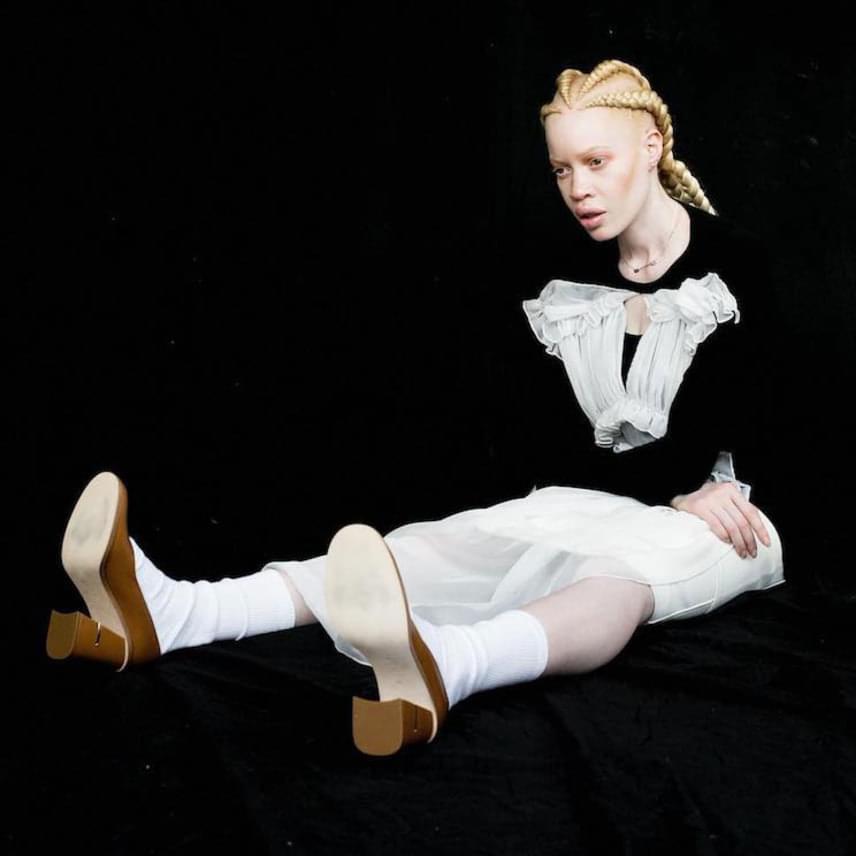 17 ezer emberből egy születik albínónak, de Diandra családjában nem ő az egyedüli: bátyja is albínó.